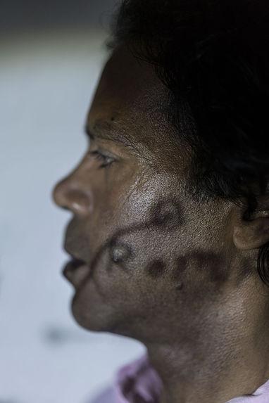 Body Maps : Workshop Asad Ahmed 1, Rome, Refugee Scart