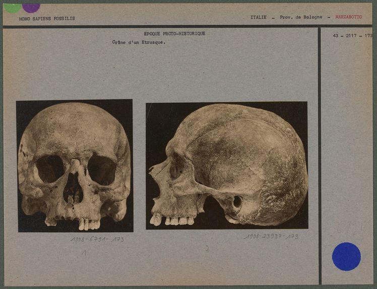 Crâne d'un Etrusque