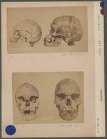 Crânes d'Australiens du Cap York
