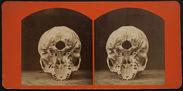 Cranium of a Pottawatomie Chief