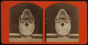Posterior View of a Cranium