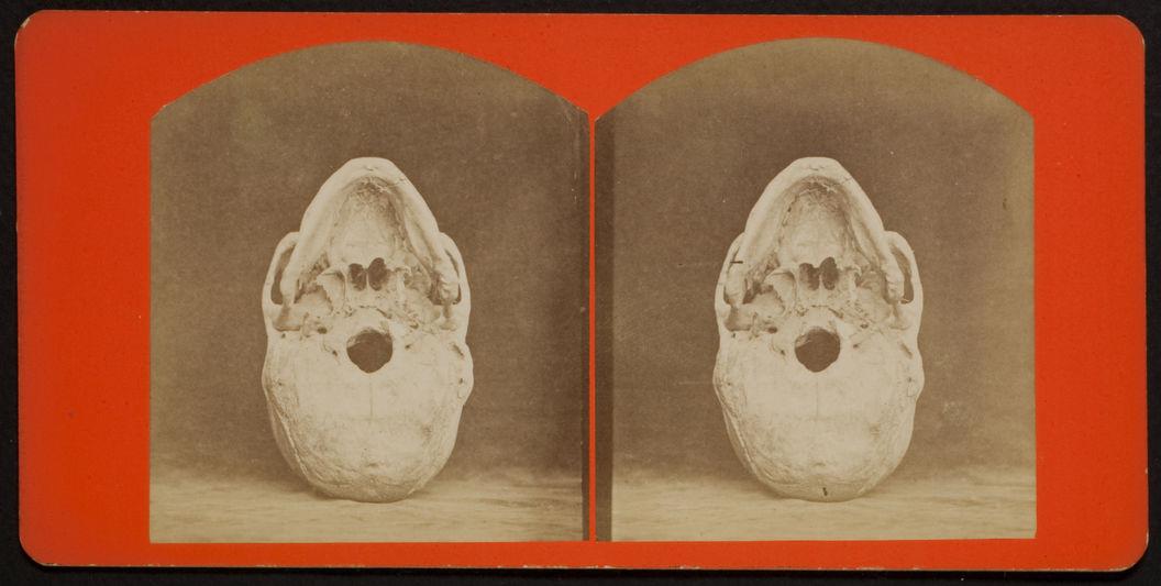 Base View of a Cranium